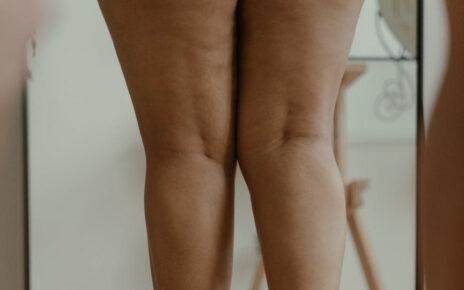 kobieta z celutitem a nogach